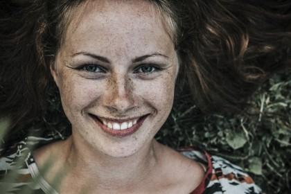 Przebarwienia na twarzy – skuteczne sposoby, aby się ich pozbyć!